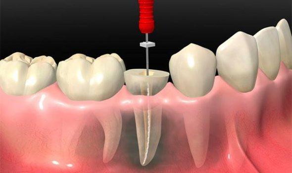 imagen de endodoncia clinica dental madrid
