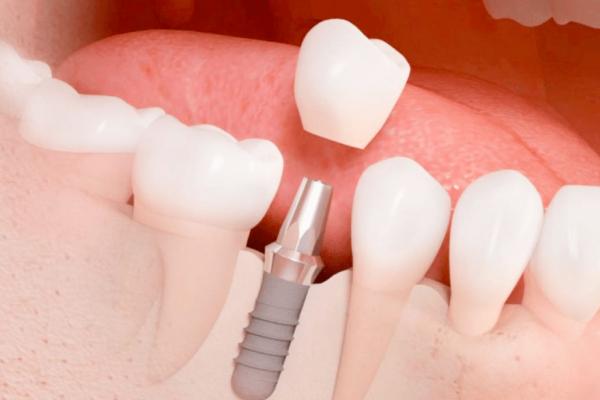 implantes dentales clinica moratalaz