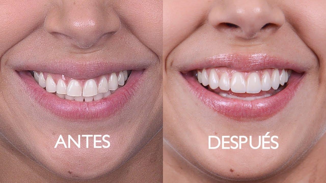 imagen de carillas dentales clinica dental moratalaz