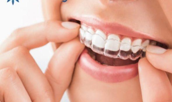 Imagen de Tratamiento Invisalign Clinica Dental Madrid