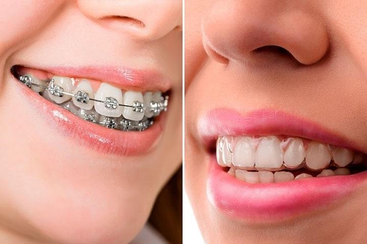 imagen de brackets vs invisalign diferencias y ventajas