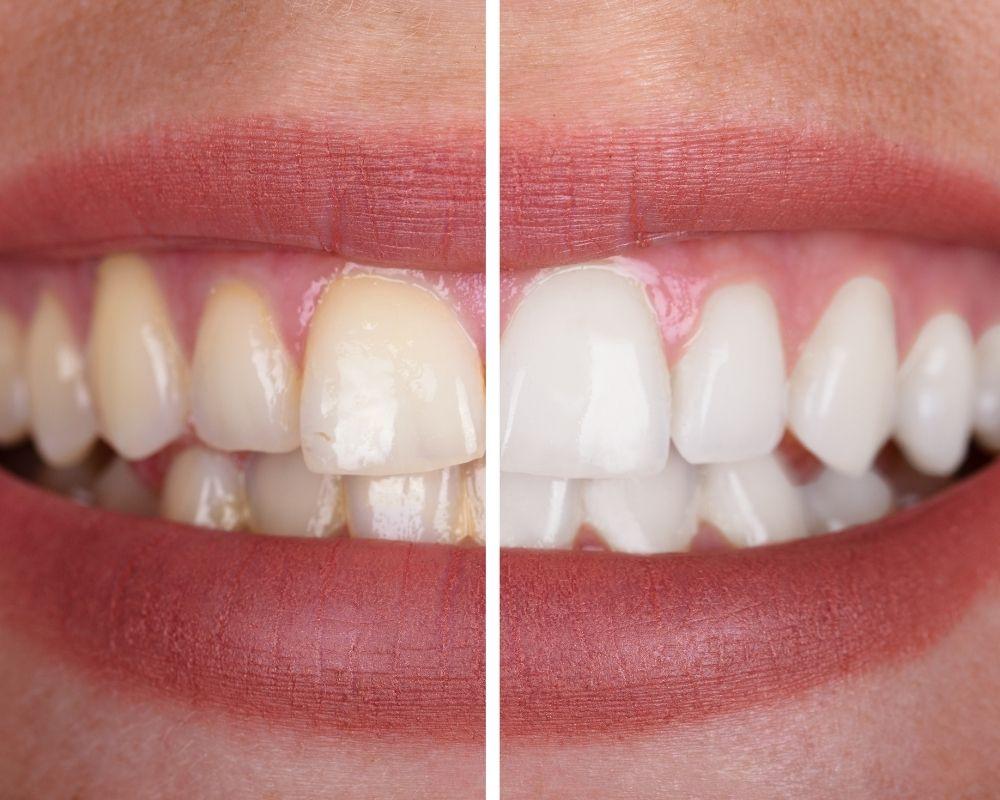 imagen de blanqueamiento dental en almeria