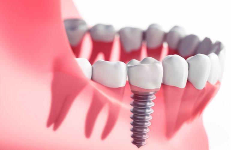 imagen de Implantes dentales o puentes dentales clinica dental en garrucha y los gallardos